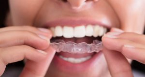 Invisalign en Vigo: Ortodoncia invisible
