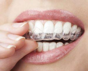 Tratamientos de ortodoncia invisible en Vigo